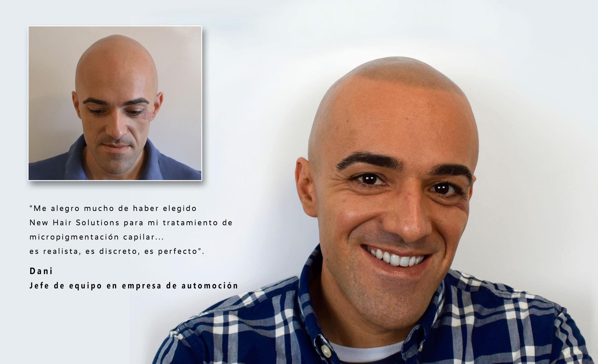 resultados antes y despues del tratamiento innovador contra la alopecia
